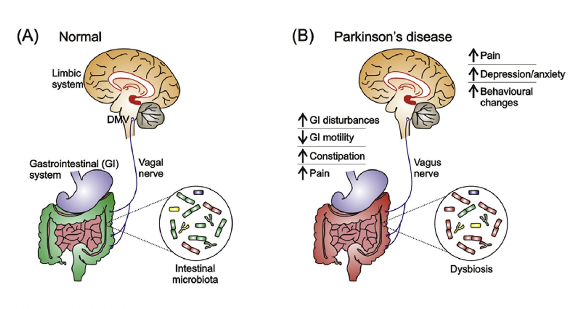 Normal vs. Parkinson's Body